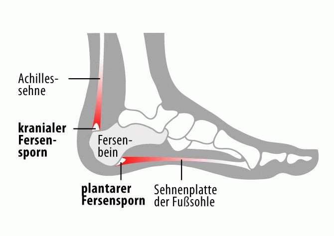 Fersensporn_Anatomie